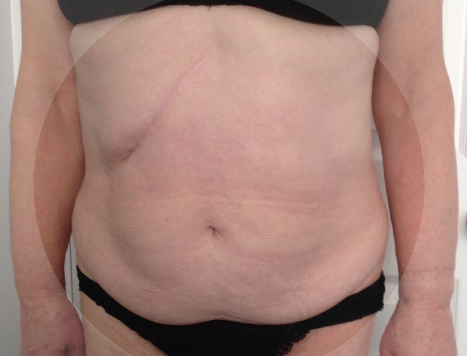 Photo of client before treatment.
