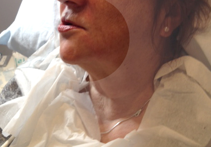 Photo of client after treatment.